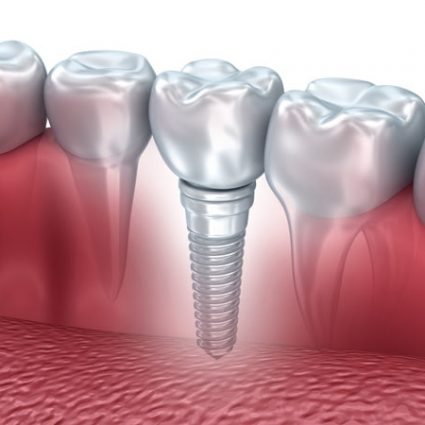 implant_img